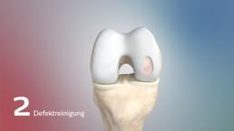 3D-Visualisierung eines Knorpels mit gereinigtem Defekt