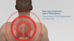 3D-Animation STIM PRO X9+ Nackenanatomie mit pulsierendem Schmerz
