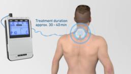 3D-Animation STIM PRO X9+ Behandlung mit Geräteinstellungen und Dauer