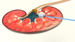 3D-Animation UROMED NEPHROquick Ballon-Katheter-Set: Abbildung des Schnittes einer Niere mit einem geblockten NEPHROquick Ballonkatheter und Kontrastmittel